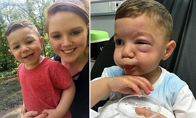 Boy hospitalised after suffering severe allergic reaction from nuts