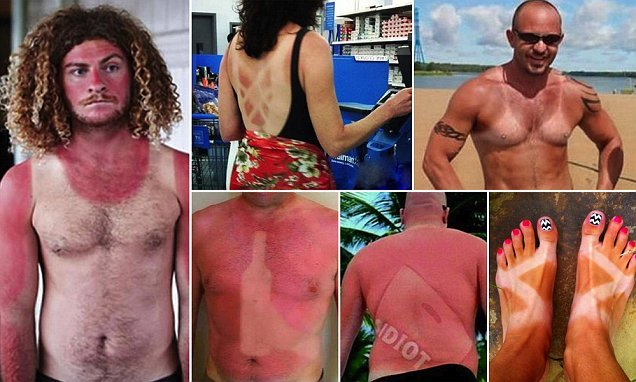 Sunburn images show epic tan fails – and bruised egos to match