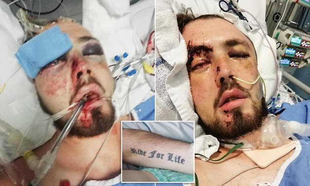 Father suffers terrible injuries after being knocked off his bike