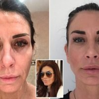 Divorcee bags a boyfriend 10 years younger after 'magic box' face lift