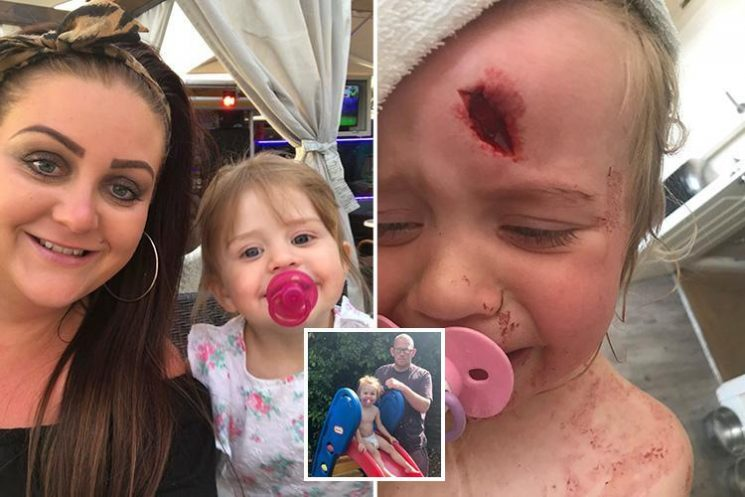 Toddler, 2, left with horrific gaping hole in her head after plastic slide toppled in freak accident