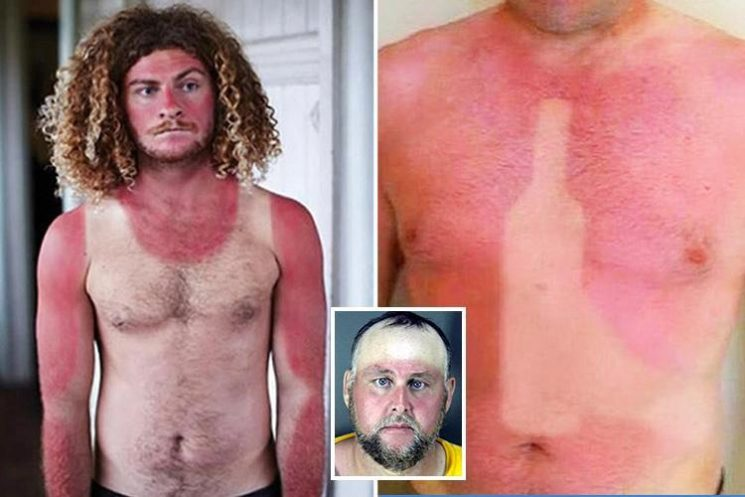 World's worst suntan fails will leave you feeling red raw