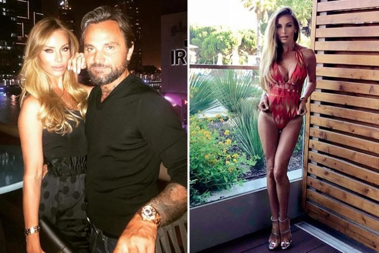 Reality star who dated Leonardo Dicaprio reveals husband begged her to stop surgery after horror allergic reaction to second nose job