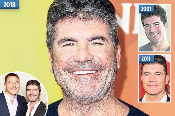 David Walliams mocks pal Simon Cowell's cosmetic work saying he looks like he's had 'an accident'