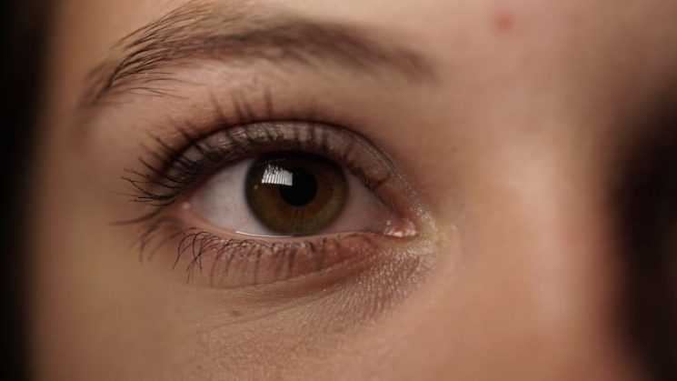Why do we get dark circles under our eyes?