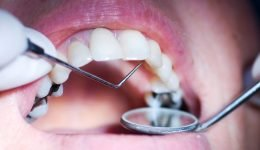 Can You Actually Get Rid Of A Cavity Without Going Under The Drill?