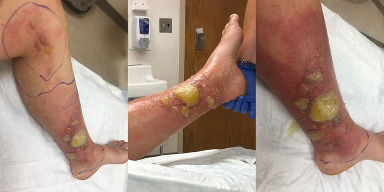 A Woman Suffered Gruesome Burns After Brushing Up Against a Wild Parsnip Plant