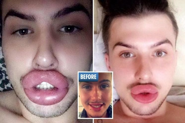 Kylie Jenner fan spends £41,000 on plastic surgery and has so much filler his lips BURST – and ignores family's pleas to stop