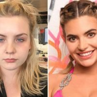 I had a £4k Love Island makeover at 21 including jawline Botox and lip fillers… and the results are (quite literally) jaw-dropping