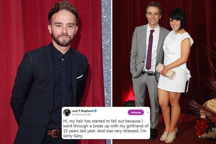 Coronation Street's Jack P. Shepherd reveals stress has caused his hair to fall out following split from girlfriend of 15 years