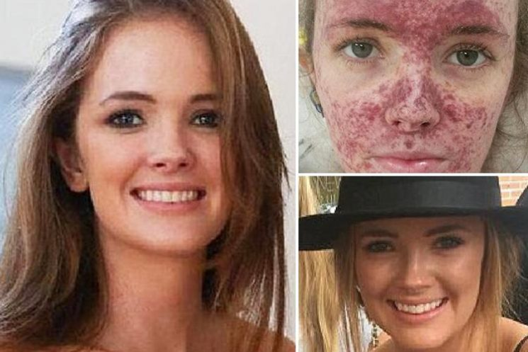 Woman, 23, just 30 minutes from death after 'bout of flu turns out to be deadly meningitis'