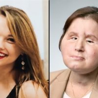 21-year-old woman becomes youngest in US to receive face transplant