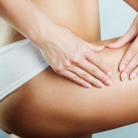 How to get rid of cellulite fast – best tips for removing 'orange peel'