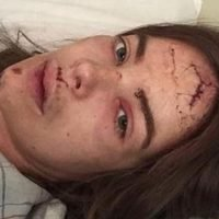 Robyn Lawley recovering from facial injury following seizure fall