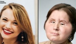 A 21-Year-Old Woman Is the Youngest Person in the U.S. to Get a Face Transplant
