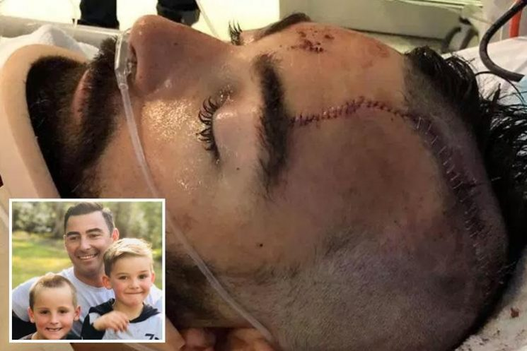 Dad suffers sickening head injuries falling from first floor balcony in heroic bid to save his son's life