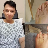 Nurse begs strangers to help her raise money to have her leg amputated after 'hammer toes' leave her in agony for 6 years