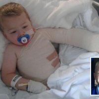 Mum recalls horrific moment young son, 3, fell fully-clothed into scalding bath leaving his skin falling off