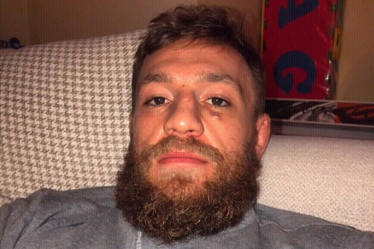 Conor McGregor shows off black eye after day of sparring in build-up to Khabib Nurmagemodov showdown