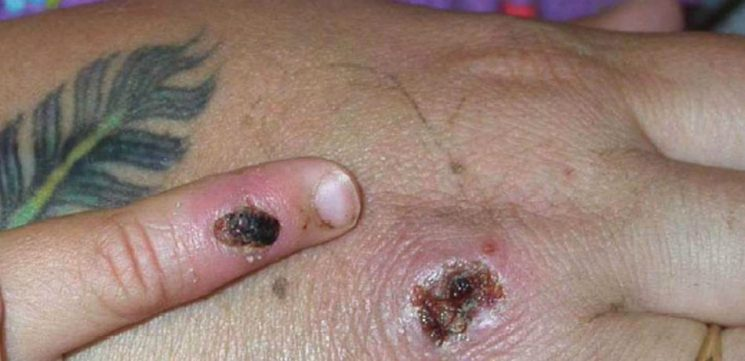 Second Person Diagnosed With Monkeypox In U.K. Likely Contracted Viral Disease In Nigeria