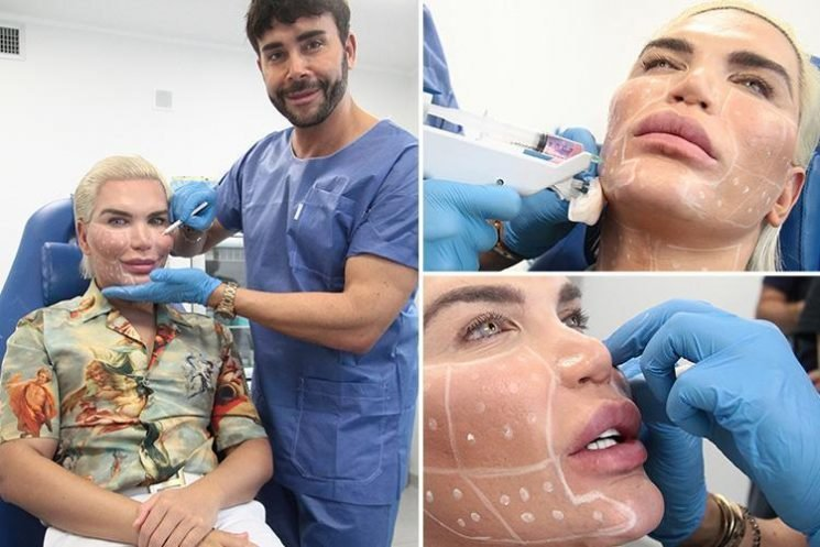 Human Ken Doll Rodrigo Alves goes under the knife AGAIN despite saying he was done with surgery