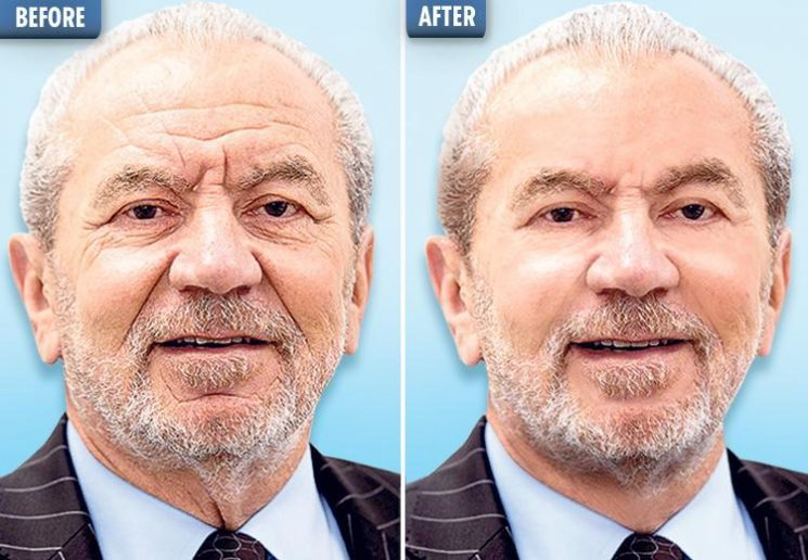 Lord Alan Sugar, 71, is set to have Botox for the first time and will be treated by previous Apprentice winner Leah Totton
