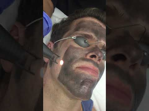 Burning My Face With A Laser Will Sooth Your Soul! | Perez Hilton