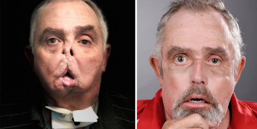 This Man Just Became the World's Oldest Person to Get a Face Transplant
