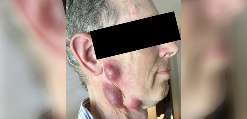 Doctors Warn About a Dangerous Infection This Man Caught from His Cat