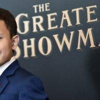 'Greatest Showman' star Sam Humphrey undergoes risky surgery