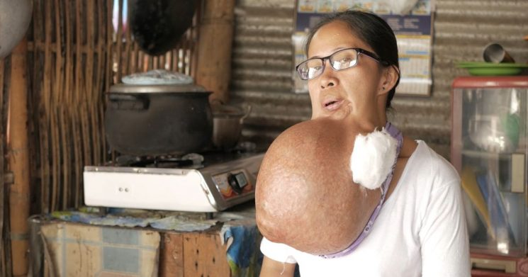Watermelon-sized tumour grows on mum's chin she originally thought was toothache