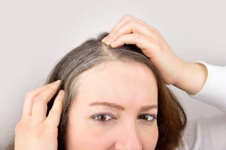 Seasonal Hair Loss: 5 Ways to Reduce Hair Loss This Fall – The Cheat Sheet