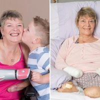 Gran who lost all four limbs after holiday infection is fitted with £10,000 3D-printed prosthetic arm