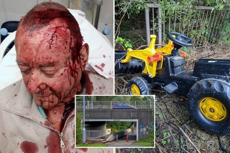 Boys, 10, quizzed by cops after toy tractor thrown off bridge left grandad with wound so deep his SKULL was exposed