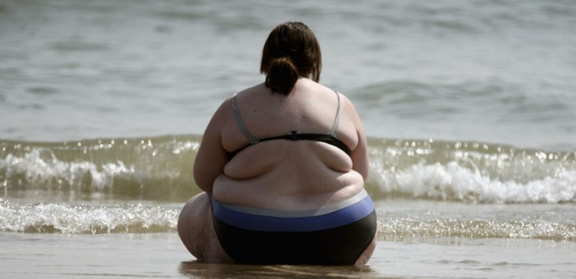 Obese Young Women Could Be At Increased Risk Of Colorectal Cancer
