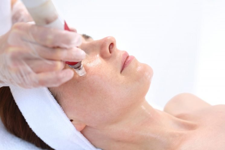 What is mesotherapy, how does it work and what are the different treatments?