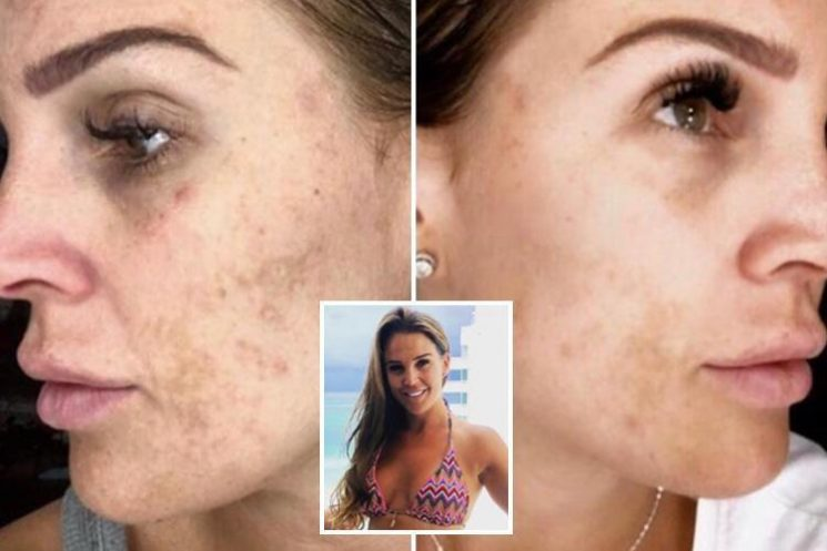 Danielle Lloyd shows off sun damaged skin in make-up free candid selfie