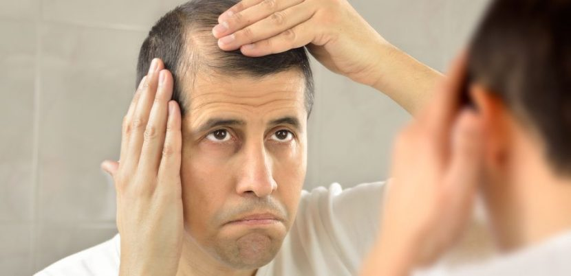 Eczema Drug Could Treat Hair Loss In Alopecia Sufferers