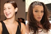Bella Hadid, Kylie Jenner & More Stars Who Double Their Lip Size With Fillers & Makeup: Before & After Pics