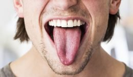 What the Color of Your Tongue Says About Your Health