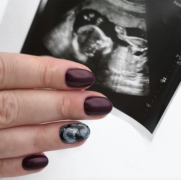 New Pregnancy Trend Has Expectant Women Turning Their Ultrasounds into Manicures