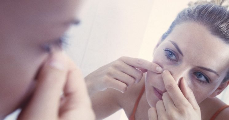 Skin expert reveals the everyday item which might be causing spots on your face