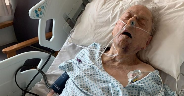 Man, 98, pictured fighting for life after 'senseless' attack in own home