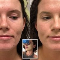 Why aestheticians are offering microneedling BB CREAM into your face