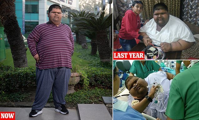 World's fattest teen who weighed 37-STONE aged 14 drops to 22-stone