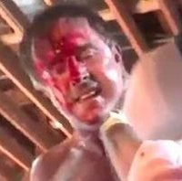 Hollywood star David Arquette rushed to hospital after hardcore wrestling Death Match goes wrong leaving horror neck wound