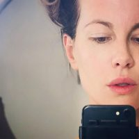 Kate Beckinsale Praises 'Mask of Liquefied Cloned Foreskins' as She Shows Off Treatment Results