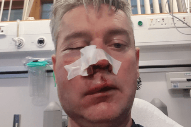 Football referee suffers sickening injuries in alleged 'attack by three footballers' during match