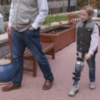 First-of-its-kind surgery allows child with AFM to walk again