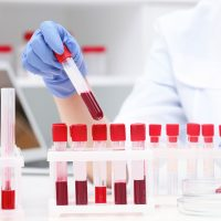 Scientists develop 'holy grail' blood test that detects cancer in 10 minutes